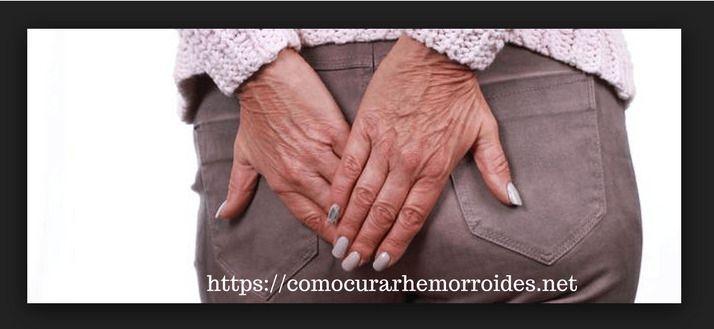 Tips para Curan las Hemorroides