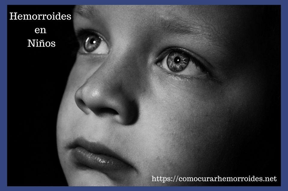 Como curar las Hemorroides en niños