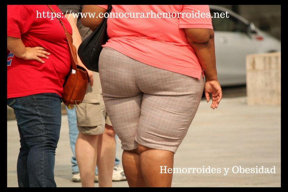 Obesidad y Almorranas