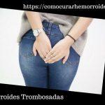 Que son las Hemorroides Trombosadas