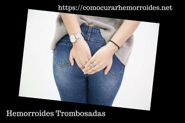Cura de las Hemorroides Trombosadas