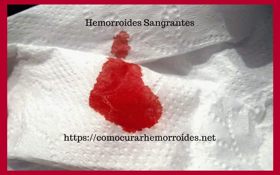 Hemorroides que sangran