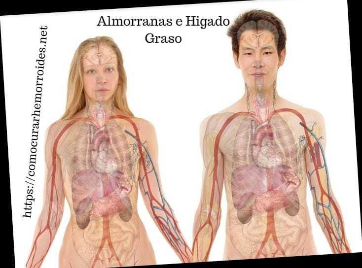 las hemorroides y el higado graso